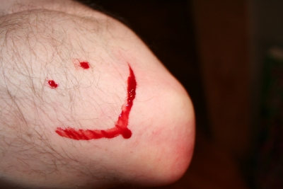 Bloody elbow smiley face, 2010